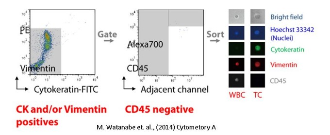 CTC(Circulating Tumor Cell):Cytokeratin & Vimentin positive, CD45 Negative 2